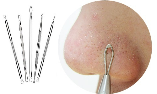 Черные точки на носу: характеристики и методы лечения