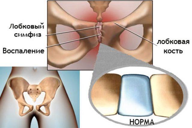 Симптомы и способы лечения симфизита при беременности