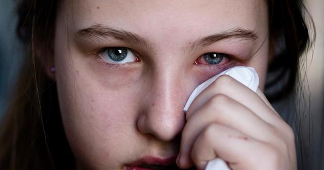 Глазная эритромициновая мазь: инструкция по применению