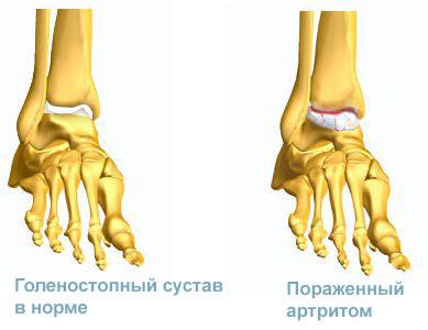 Артрит голеностопного сустава, его симптомы, лечение, фото