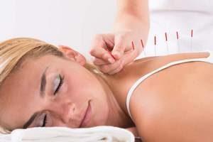 Как может помочь иглоукалывание при остеохондрозе шейного отдела позвоночника