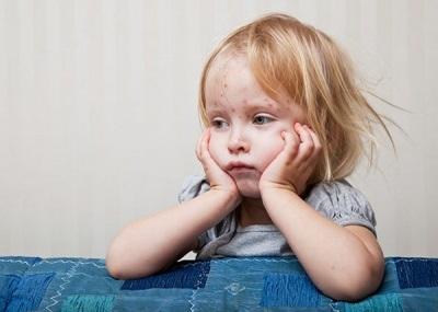 Можно ли повторно заболеть ветрянкой взрослому человеку, какие симптомы