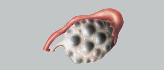 Поликистоз яичников, симптомы и причины