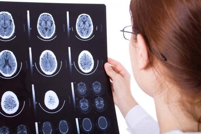 Гидроцефалия головного мозга у взрослого