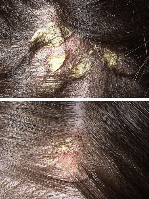 Себорея на голове: признаки, причины, методы избавления