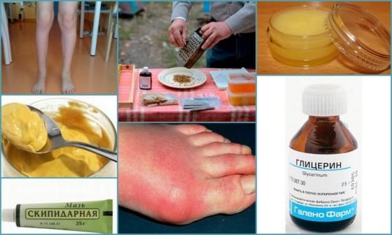 Правила лечения артрита народными средствами дома