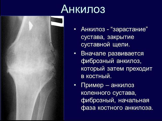 Что такое артроскопия коленного сустава?