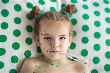 Ветрянка у детей - симптомы, сколько длится инкубационный период, лечение