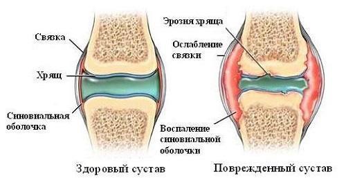 Причины и лечение хруста в суставах