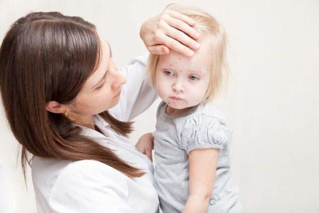 Ветрянка во рту у ребенка - чем обработать, чем мазать, чем лечить, фото
