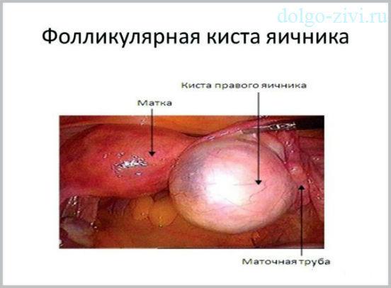 Не очень приятный диагноз – фолликулярная киста яичника