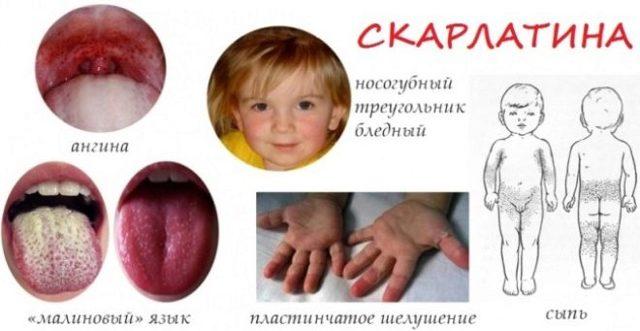 Симптомы и способы лечения скарлатины у детей