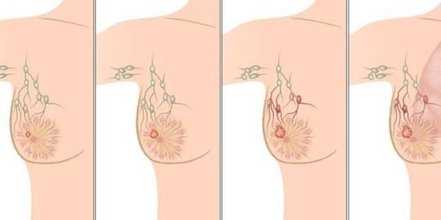 Признаки рака грудины у женщин