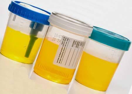 Белок в моче при беременности: норма, причины, белок на поздних сроках
