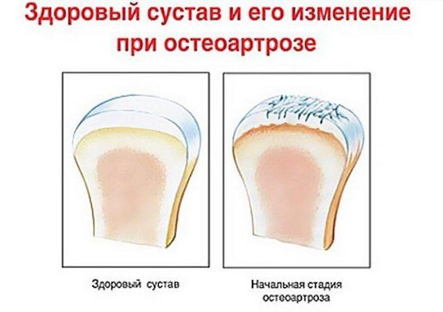 Остеоартроз коленного сустава 1 степени: лечение