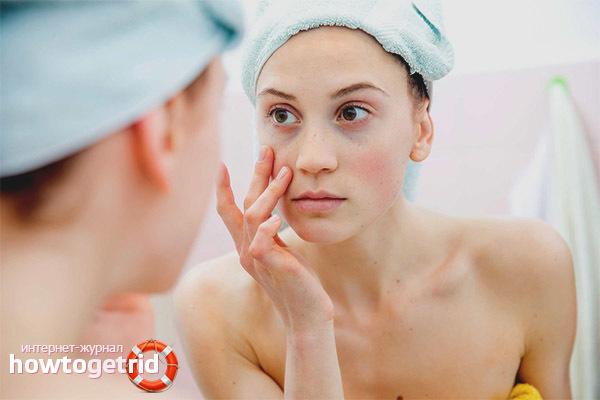 Каковы причины появления мешков под глазами и как их лечить