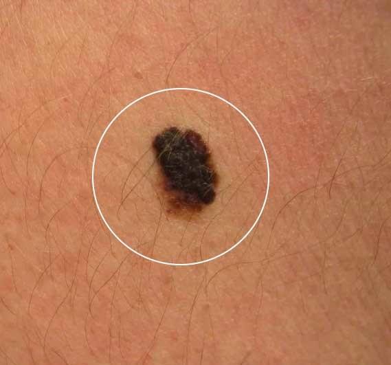 Невус бородавчатый: внешние признаки и лечение
