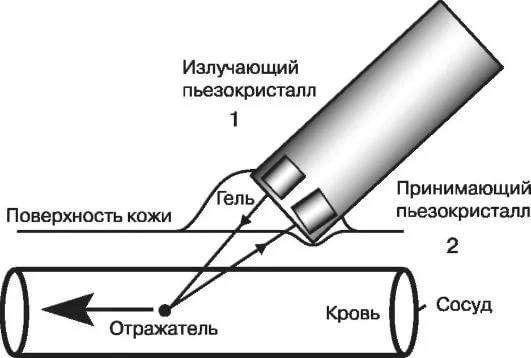 Процедура Доплер УЗИ при беременности
