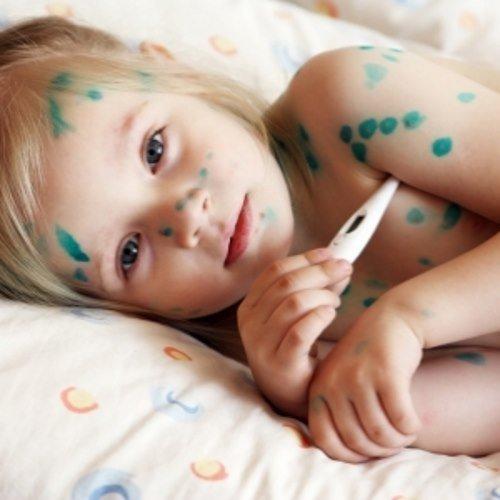 Ветрянка у детей, симптомы и лечение