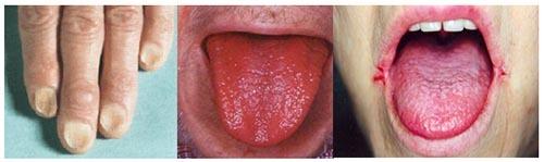 Железодефицитная анемия, симптомы и лечение