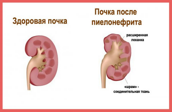 Боль в правом боку при беременности