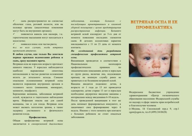 Причины повторного заражения ветрянкой, особенности диагностики и лечения заболевания