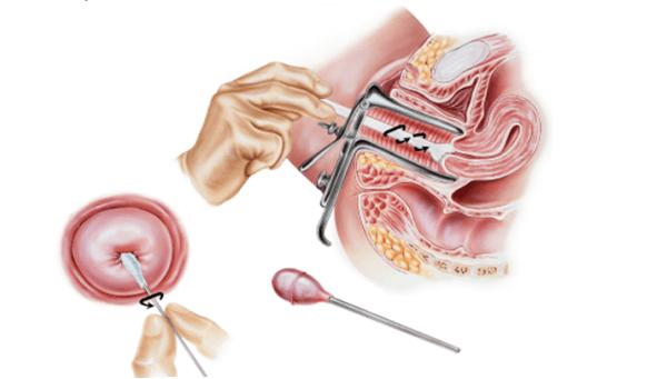 Дисплазия шейки матки 1 степени
