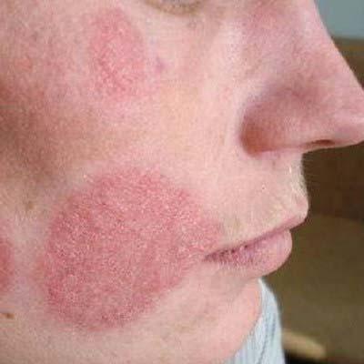 Себорейный дерматит (жирная экзема) на лице: причины развития, лечение и профилактика