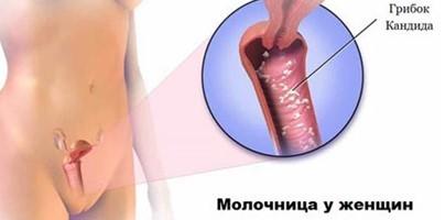 Явные симптомы и эффективные способы лечения кандидоза