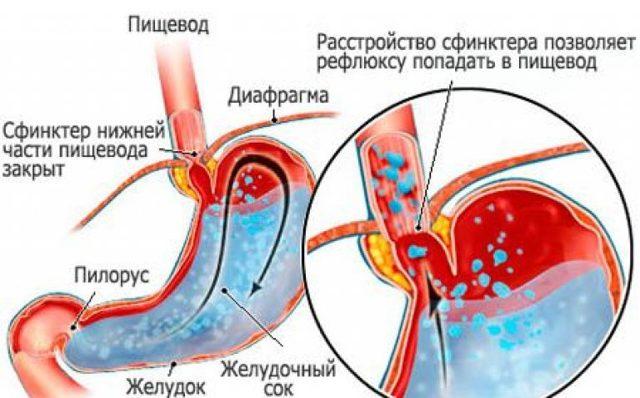 Рефлюкс эзофагит, симптомы и лечение