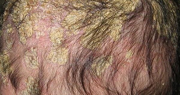 Себорейный дерматит у детей: причины, симптомы, лечение