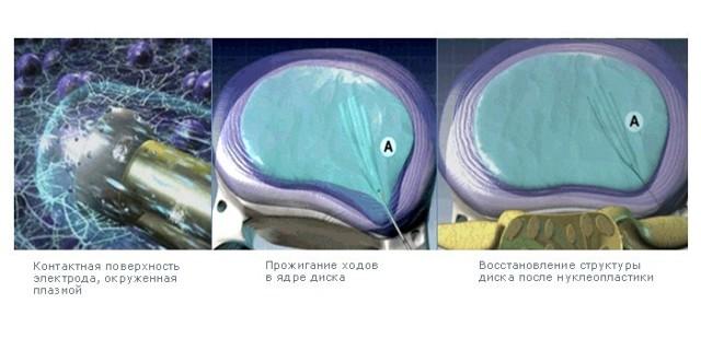 Виды операций по удалению грыжи поясничного отдела