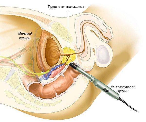 УЗИ диагностика: подготовка к исследованию мочевого пузыря