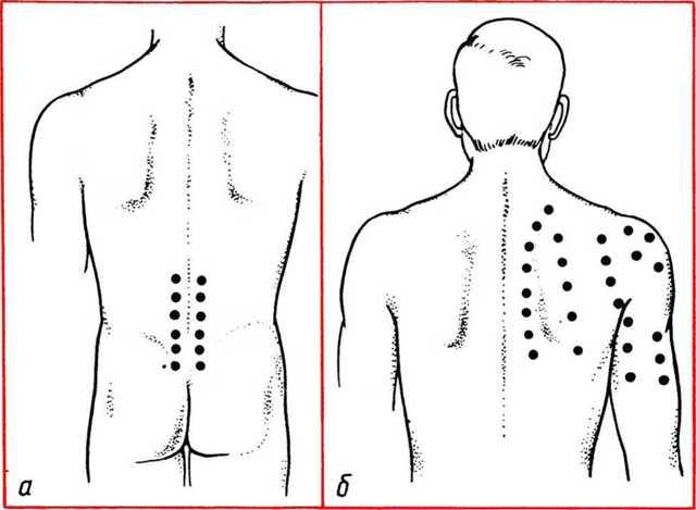 Как правильно делать массаж спины и шеи в домашних условиях
