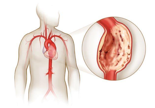 Кашель при сердечной недостаточности: симптомы и методы лечения