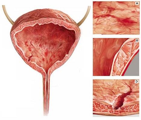 Инфекции мочевыводящих путей у детей: причины, виды, диагностика, клиника, лечение