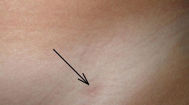 Лапароскопия кисты яичника у женщин: удаление и операция