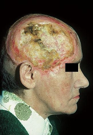Базальноклеточный рак кожи: лечение, прогноз