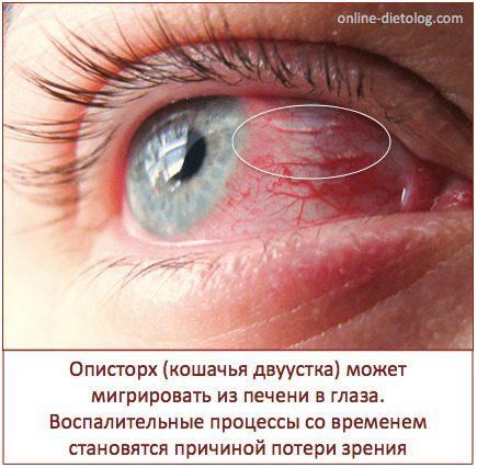 Паразиты в организме человека: симптомы