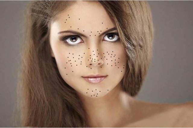 Черные точки на лице: как с ними бороться
