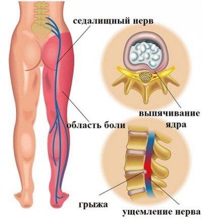Боли в спине в области поясницы: причины
