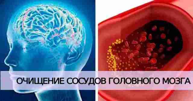 Чистка сосудов средствами народной медицины