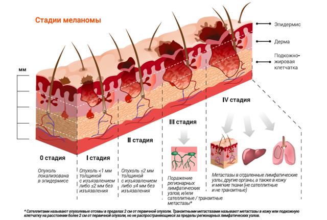 Меланома головы: локализация, развитие, диагностика и лечение