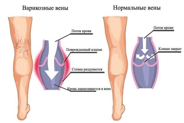 Боль и отек ног ниже колен - в чем причины