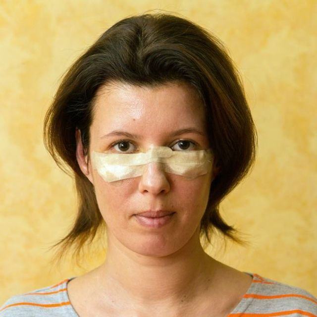 Как снять отек с лица?