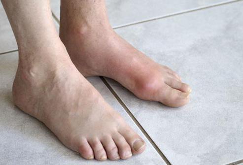Болят суставы ног: что делать?