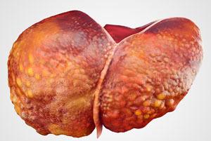 Цирроз печени: симптомы и лечение