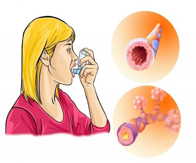 Приступ бронхиальной астмы неотложная помощь