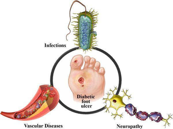 Диабетическая стопа: фото, симптомы и методы лечения