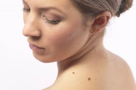 Развитие меланомы: стадии и прогноз заболевания